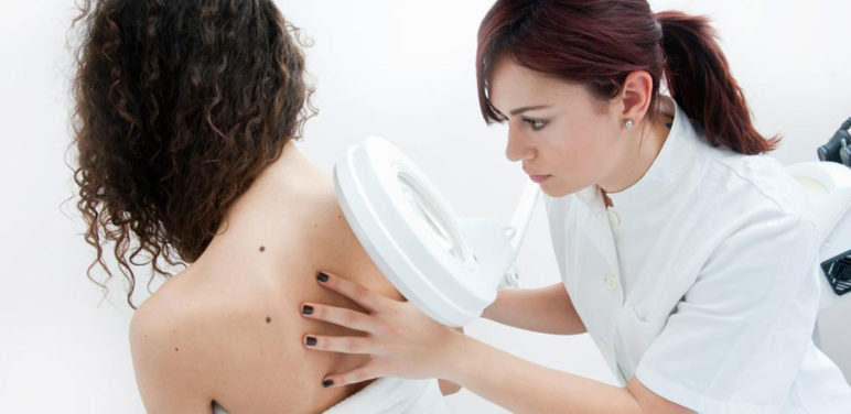 5 ways to reduce the risk of melanoma
