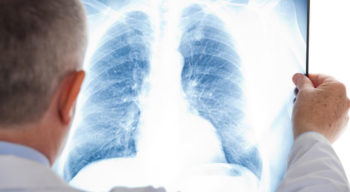 A few things you should know about mesothelioma cancer