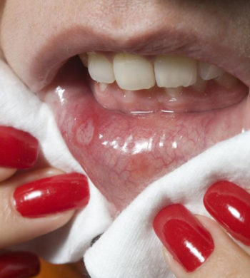Effective ways to prevent cold sores