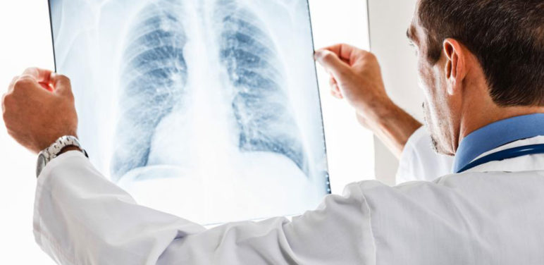 Know all about pulmonary embolisms
