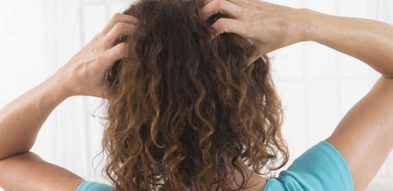 Symptoms and treatment of scalp psoriasis