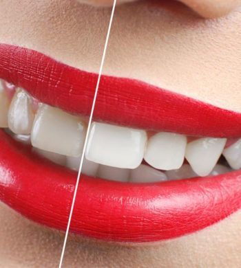 Yellow Teeth – How to avoid discoloration of teeth