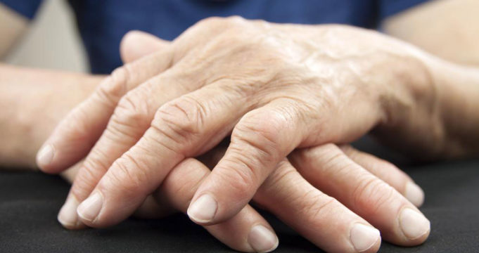 An Overview of Arthritis and Lupus