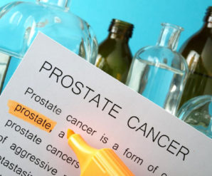 Effective Alternative Treatment Methods for Prostate Cancer in the Early Stages
