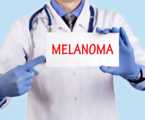 Introduction to Metastatic Melanoma Treatment
