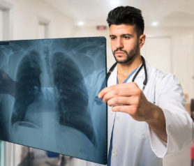 Know The Symptoms And Treatment Of Pulmonary Embolisms