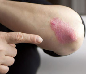 Various Treatment Options for Psoriasis