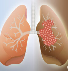 Types of Lung Cancer: Non-small Cell, Small Cell and Metastatic