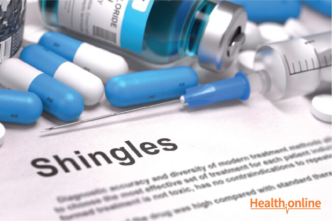 Diagnosis and Treatment of Shingles