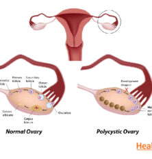Causes of Polycystic Ovary Syndrome (PCOS)