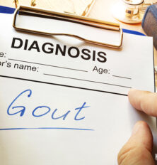Gout Exams, Tests, and Diagnosis