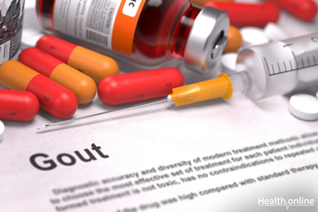 Gout Treatment and Prevention