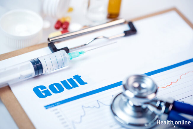 The Common Risks and Causes of Gout