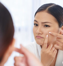 Using Essential Oils to Treat your Acne