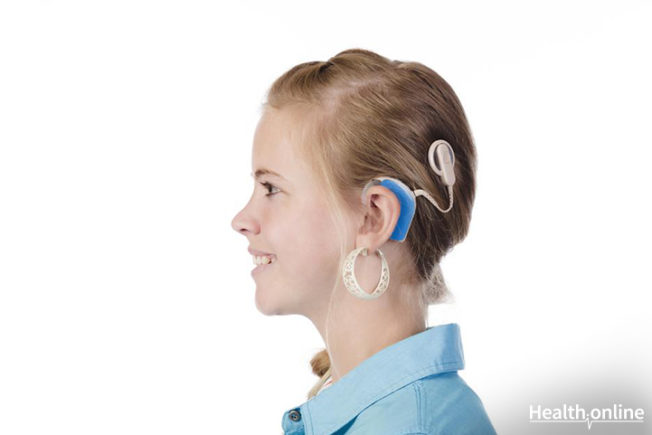 All You Need to Know About Cochlear Implants