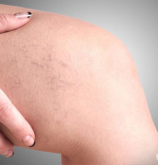 Symptoms and Risk Factors of Varicose Veins