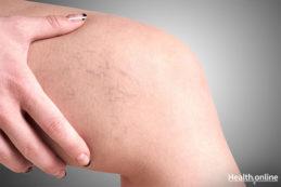 Symptoms and Risk Factors of Varicose Veins