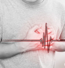 Angina-Pectoris-An-Overview