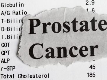 Common Risk Factors for Prostate Cancer