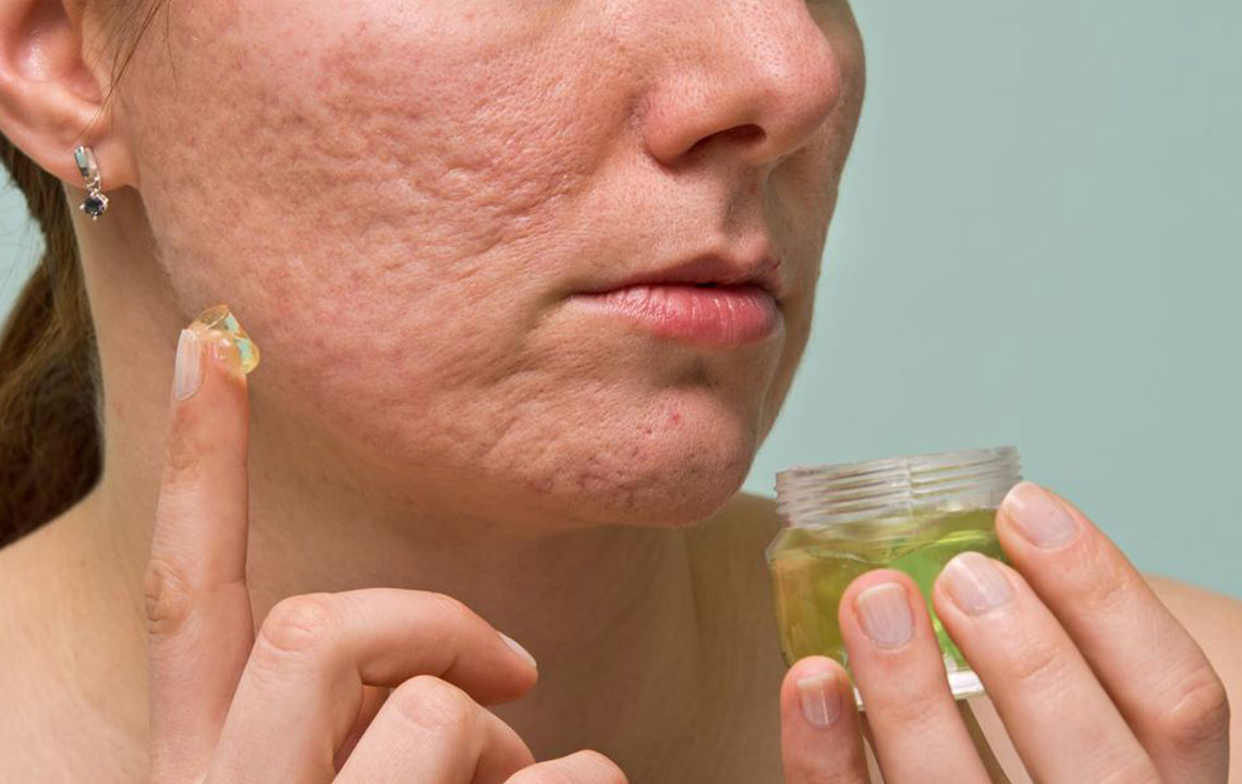 6 useful tips to treat acne scars, marks, and blemishes