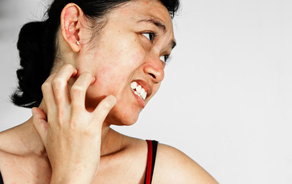 A few common types skin rash that affects people