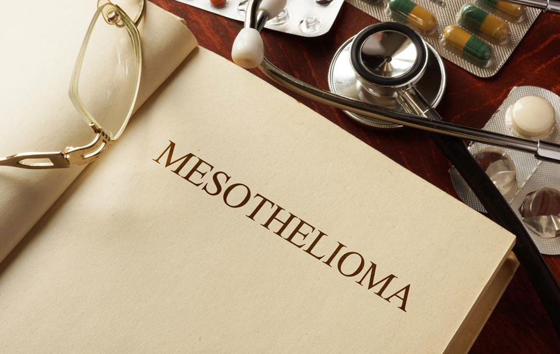 Everything you should know about Mesothelioma