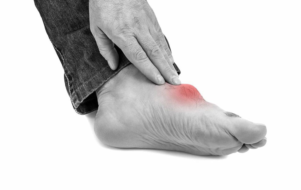 Top triggers for gout foot pain