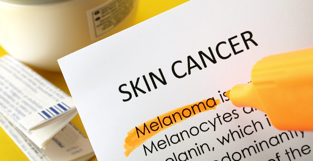 signs-and-symptoms-of-melanoma