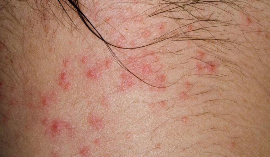 An Introduction to the Types of Itchy Skin Rashes » TheHealthDiary com