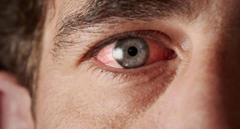 Understanding the causes of chronic dry eye » Tips For Health