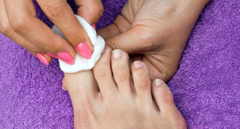 Ways to Cure Nail Fungus » Tips For Health
